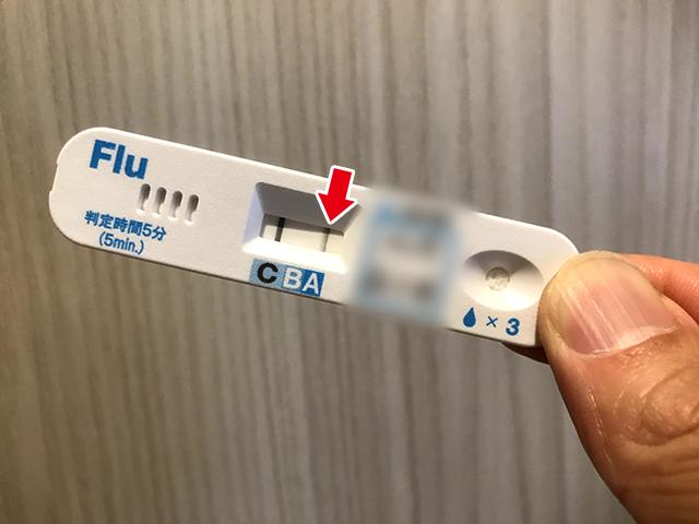 インフルエンザの検査結果 A型 陽性